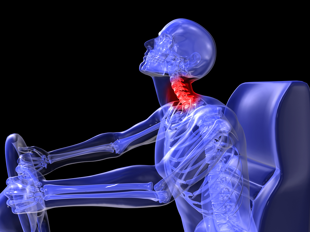 neck injuries in car collision Neck injuries can be extremely debilitating, whether they are caused by years' worth of repetitive motions or the sudden trauma of a collision, fall, or accident it can occur whenever the neck is suddenly forced beyond its normal movement and is common among car accident victims.